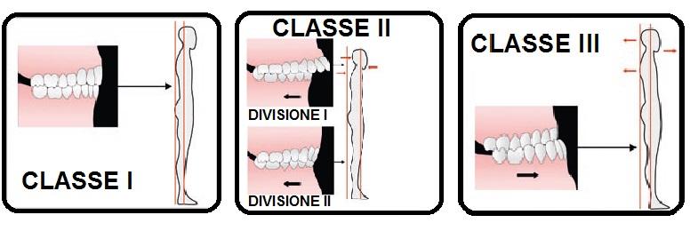 biolcalenda-febbraio-2014-lingua-deglutizione-bastianello-classi-dentali-angle