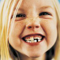 dentosofia-denti-bambini
